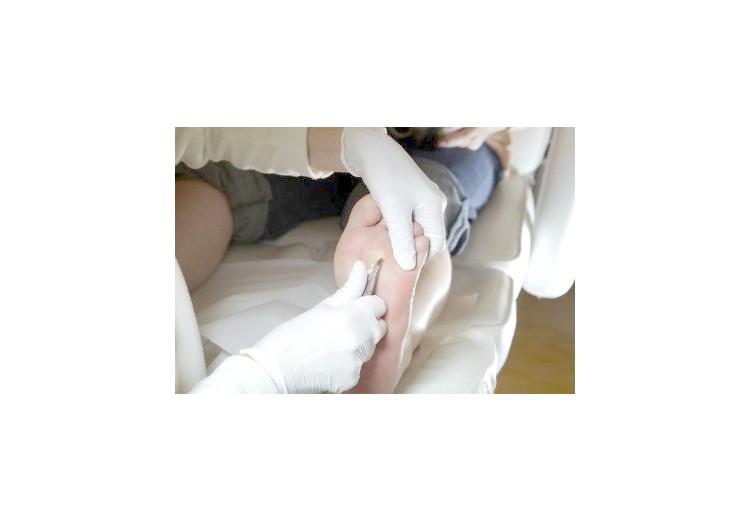 Bradavice: příčiny, příznaky, diagnostika a léčba