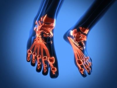 A look At Brittle Bone Disease Treatment Options