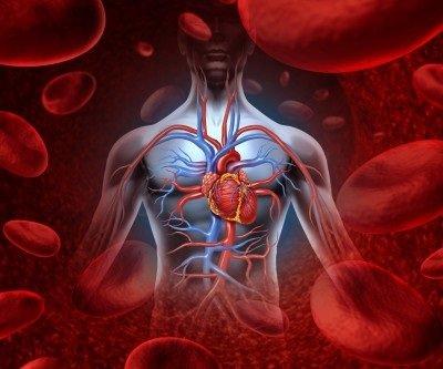 Syndrom horní duté žíly: příčiny, příznaky, diagnostika a léčba
