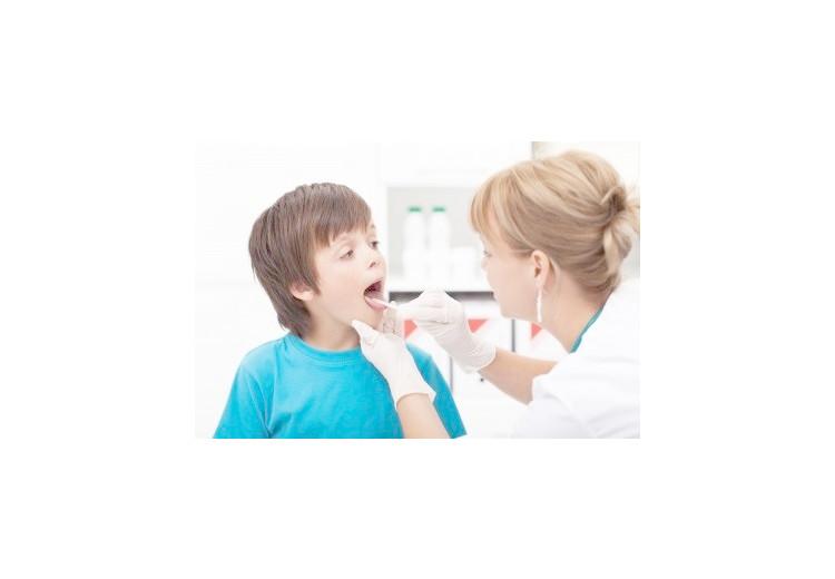 Top 9 Natural Sore Throat Remedies
