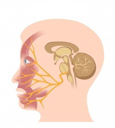 Obrna lícneho nervu: príčiny, príznaky, diagnostika a liečba