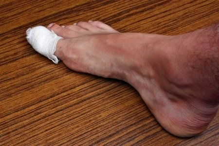 Learning more about ingrown toenail post surgery care