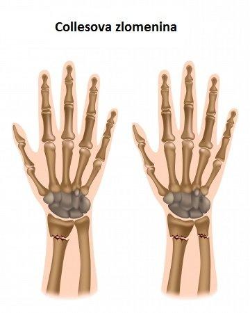 Collesova zlomenina: příčiny, příznaky, diagnostika a léčba