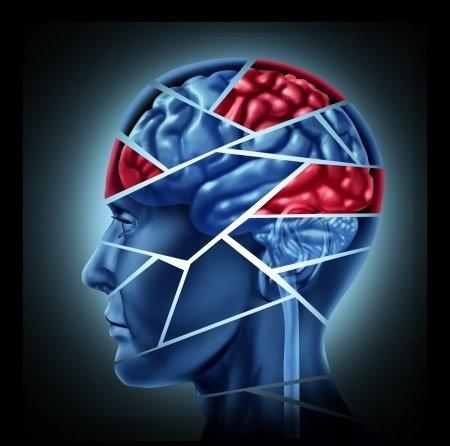 Aarskogův syndrom: příčiny, příznaky, diagnostika a léčba