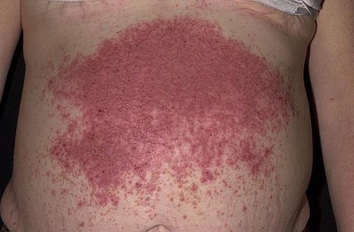 Vyrážka na břiše při Duhringově chorobě