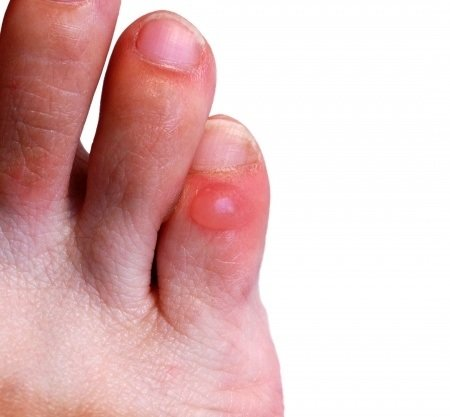 A Comprehensive Guide To Blisters: Symptoms, Treatment And Prevention
