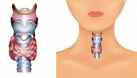 Epiglotitida: příčiny, příznaky, diagnostika a léčba