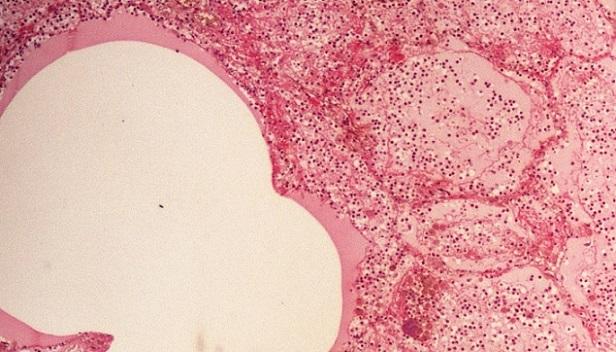 Histopathology Quiz 4