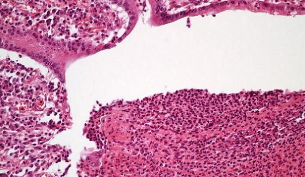 Histopathology quiz 6