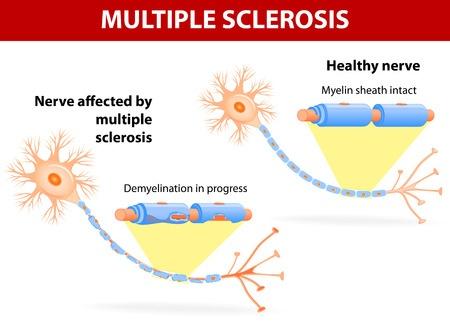 Multiple Sclerosis Diagram