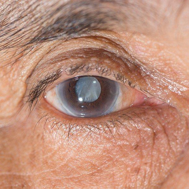 Sivý zákal: príčiny, príznaky, diagnostika a liečba