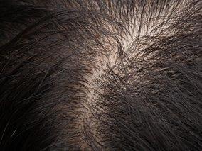 20 tipov ako zatočiť s mastnými vlasmi