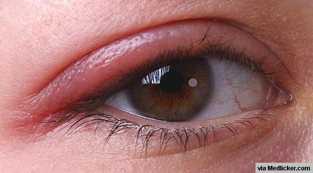 Blepharitis (Eye Stye) on right eye