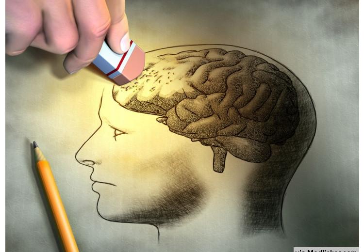 11 médicaments qui peuvent causer des pertes de mémoire