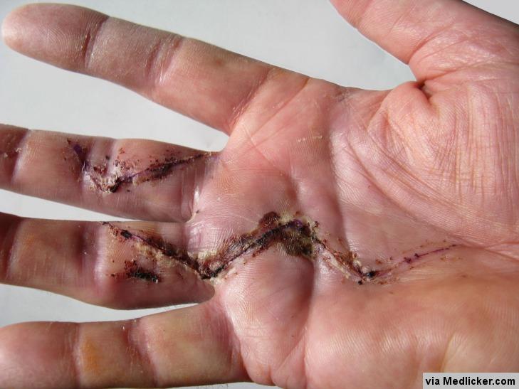 Une main après une opération de la maladie de Dupuytren