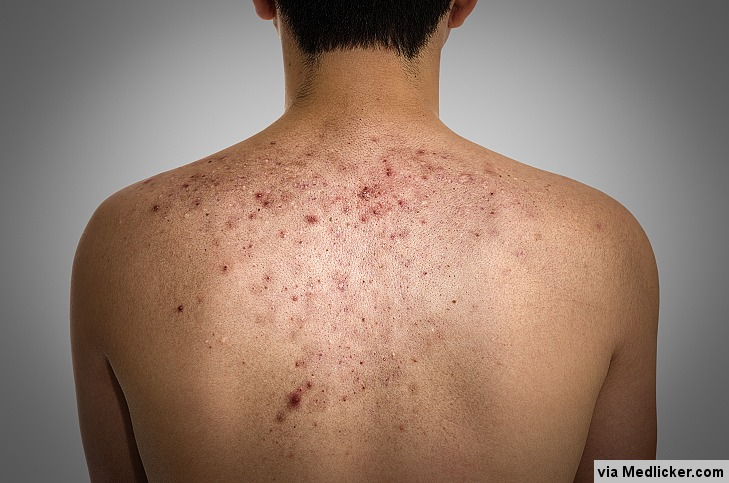 Akné: příčiny, příznaky, diagnostika a léčba