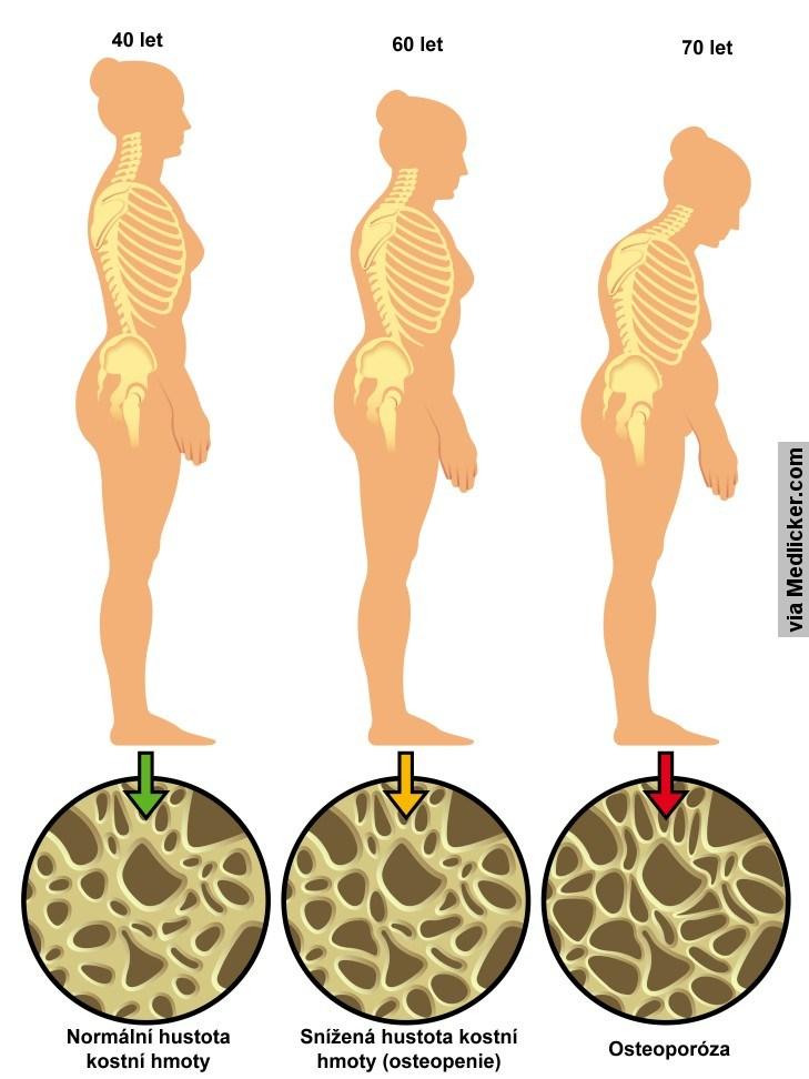Osteoporóza a věk