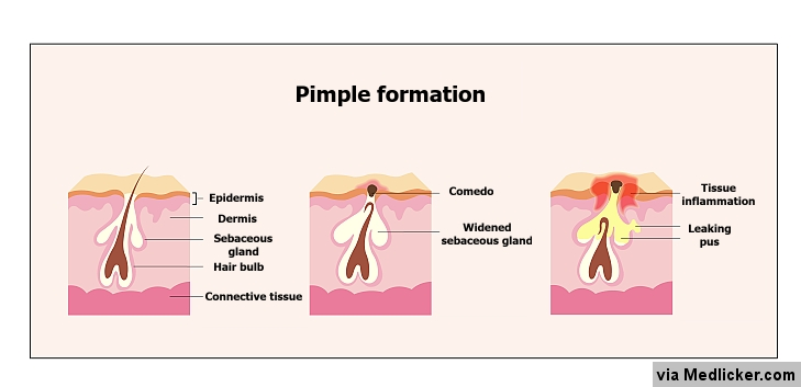 Pimple (zit) formation