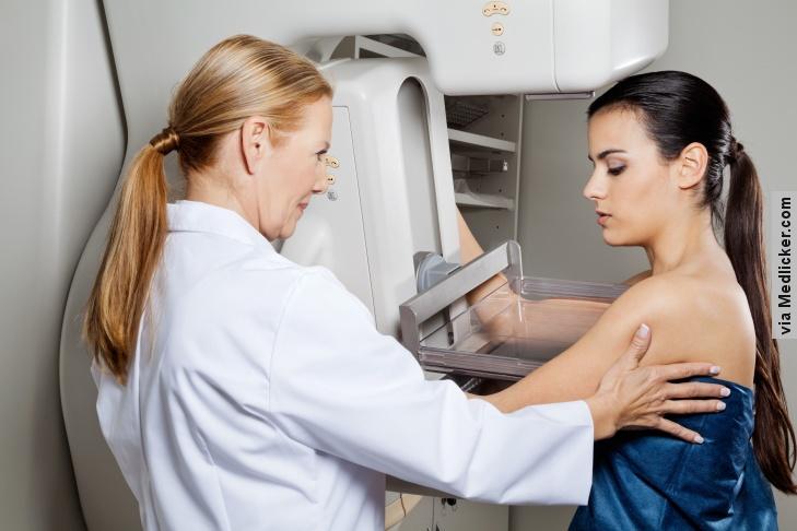 Testování genu BRCA ve spojitosti s rakovinou prsu