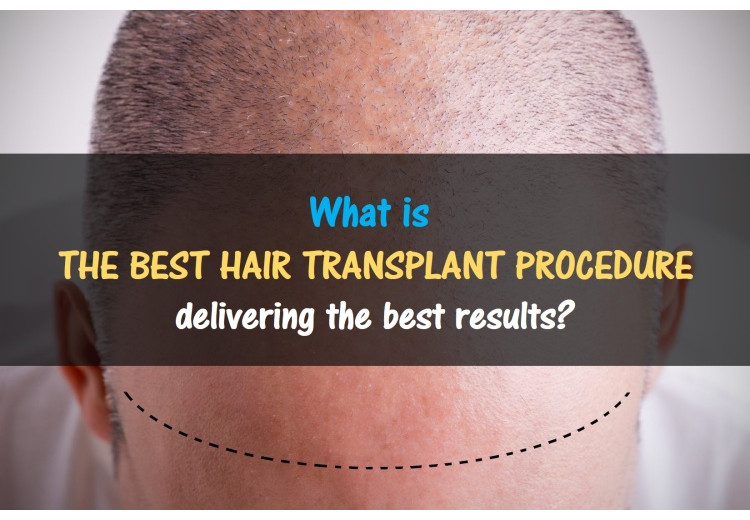 What Is The Best Hair Transplant Procedure?