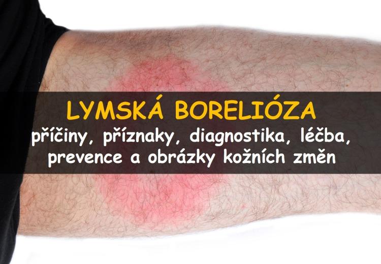 Lymská borelióza: příznaky, léčba a prevence