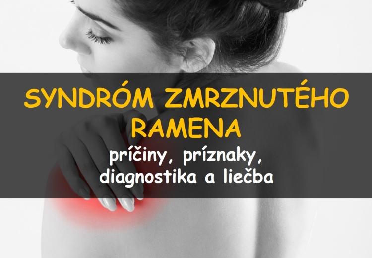 Syndróm zmrznutého ramena: príčiny, príznaky, diagnostika a liečba
