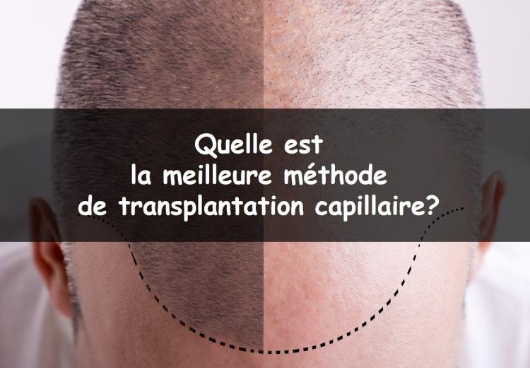 Quelle est la meilleure méthode de transplantation capillaire?