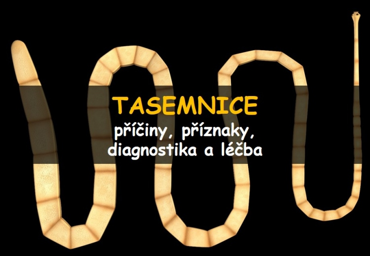 Tasemnice (tenióza)