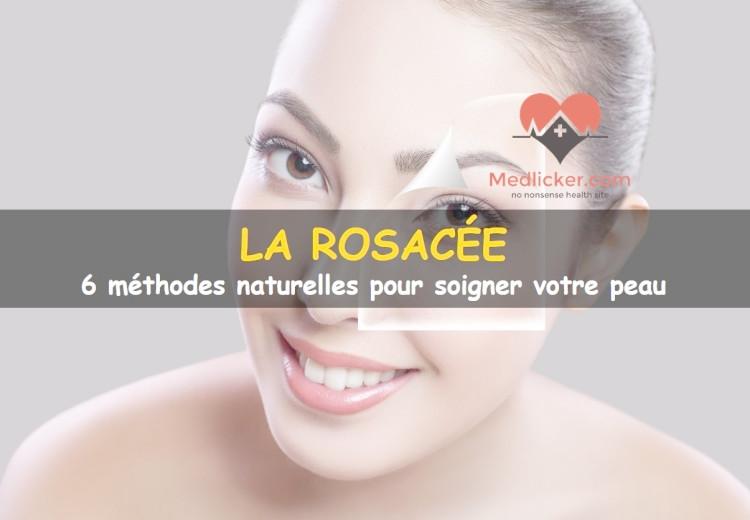 Traiter la rosacée: 6 méthodes naturelles pour soigner votre peau