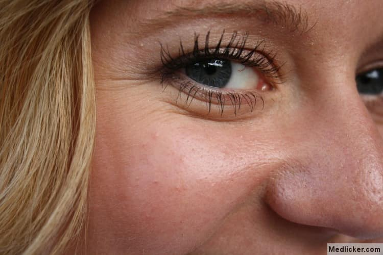 Girl with wrinkles around eyes