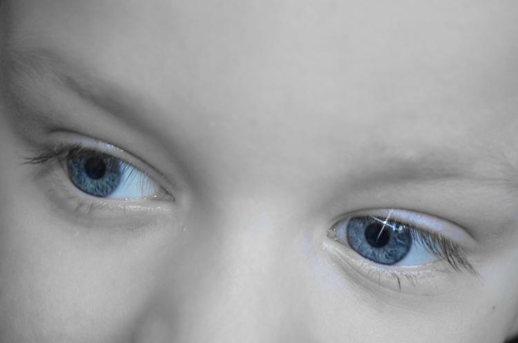 how to fix ingrown eyelash