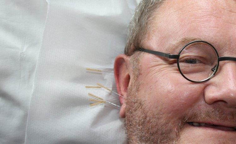 Akupunktura v uchu muže