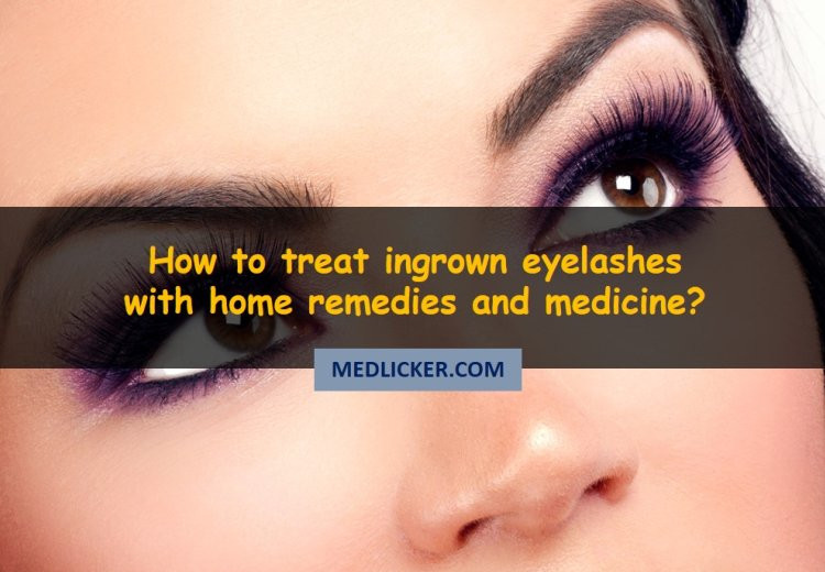 How to deal with ingrown eyelashes (trichiasis)?