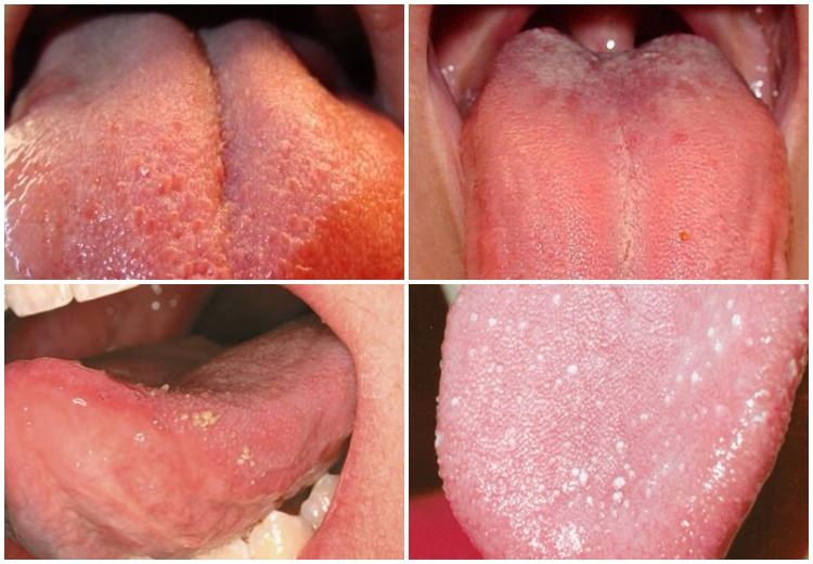 Swollen taste buds on tip, back and side of the tongue