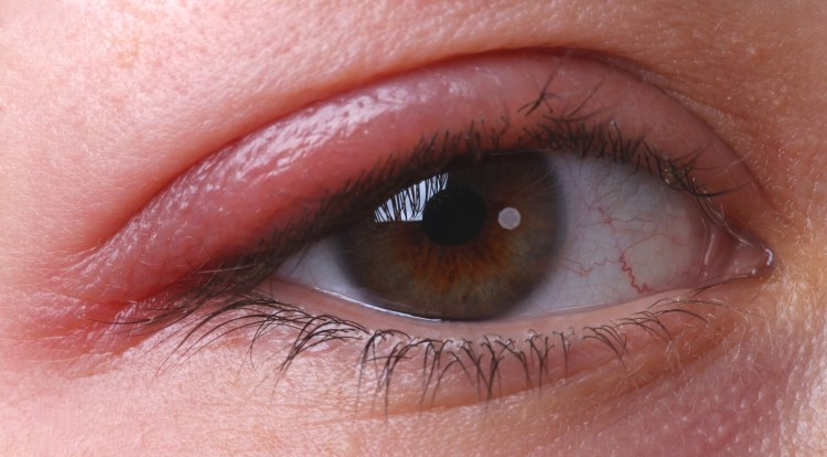 Eyelid redness and Red spots inside lower eyelid: Common ...