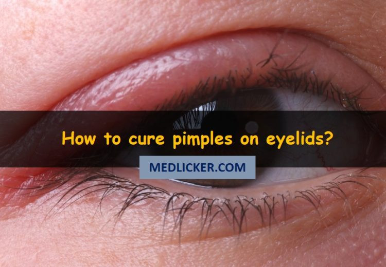 How to cure pimples on eyelids with medicines and home remedies?