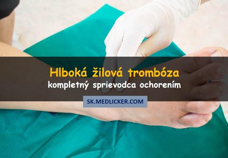Hlboká žilová trombóza: príčiny, príznaky, diagnostika a liečba