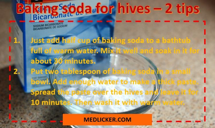 How to use baking soda for hives?