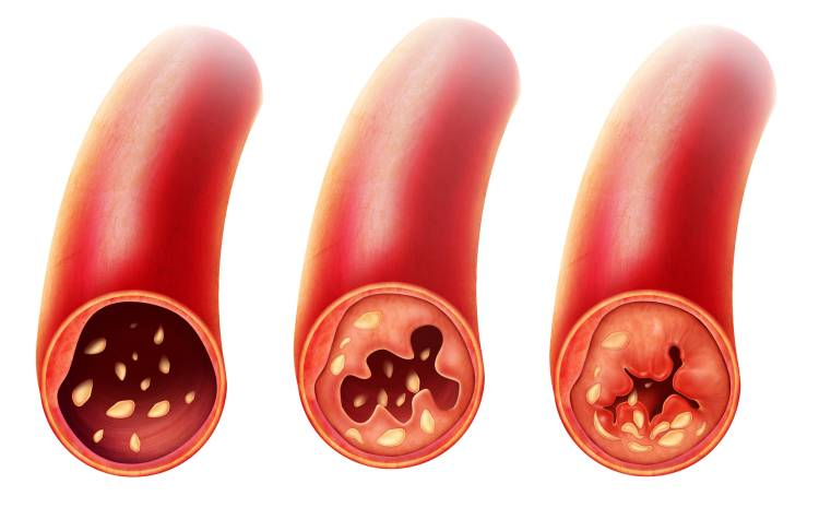 Jak se ucpávají cévy?