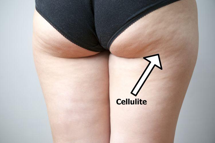 Cellulite on female hips