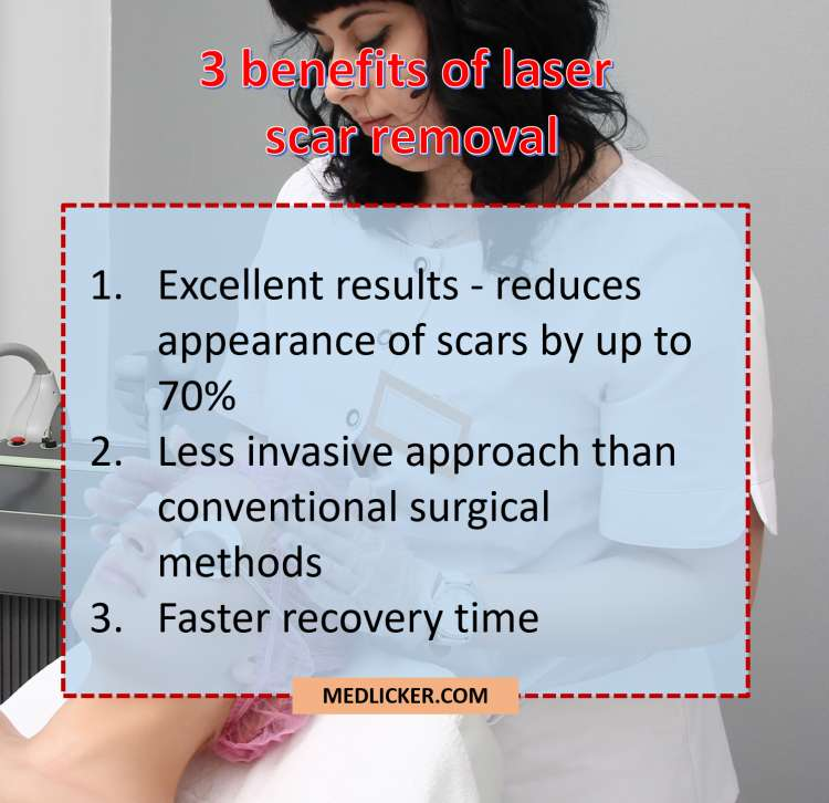 Benefits of laser scar removal