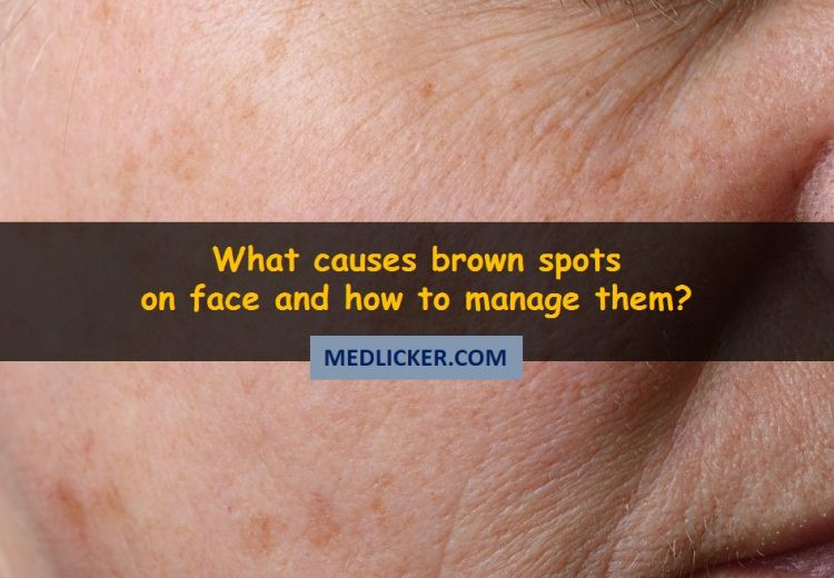 How To Remove Brown Spots From Your Face?